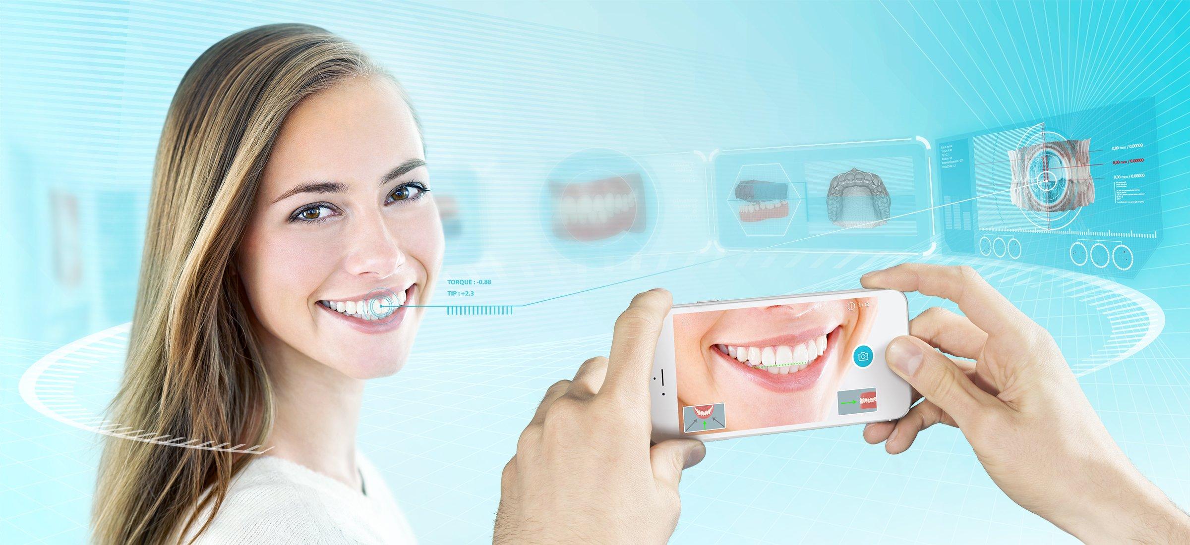 Dental Monitoring Image