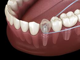 Flossing-around-implant-scaled