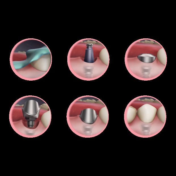 Dental implant Process at Maria Cardenas DMD