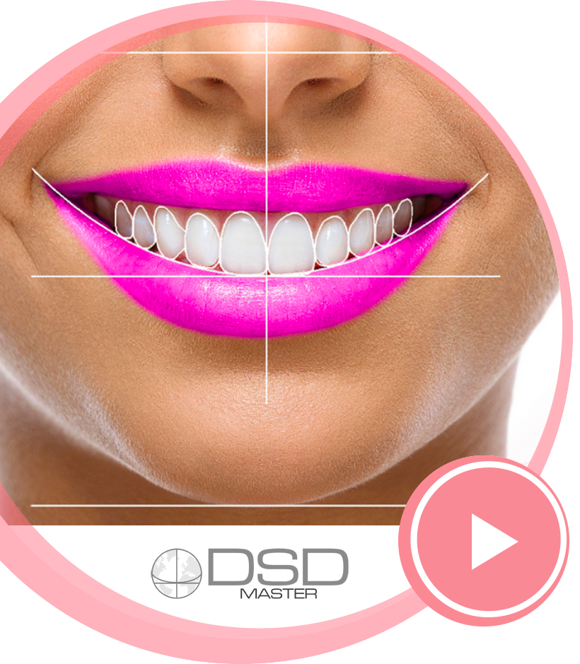 Digital Smile Design video