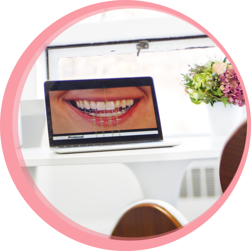 A laptop in a room at Maria Cardenas DMD dental clinic shows the digital design of a patient's new smile on screen.